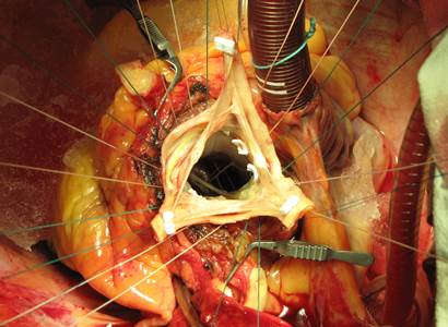 Aneurysma aorty
