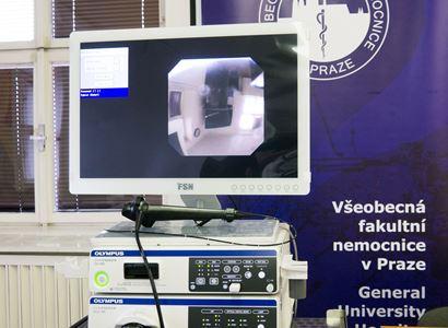 Nový bronchoskopický přístroj pomůže ve VFN diagnostikovat a léčit i ty nejmenší dětské pacienty