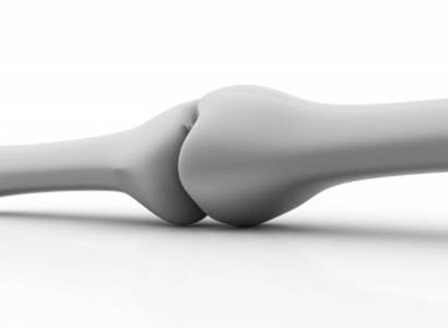 Osteoporóza ohrožuje hlavně starší osoby a ženy po menopauze. Důležitá je především prevence