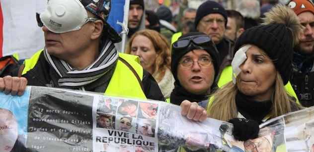 Pásky na očích, zkrvavené tváře, transparenty plné portrétů zraněných demonstrantů. A nakonec došlo i na střety s policií. Tak vypadala další sobota v režii žlutých vest