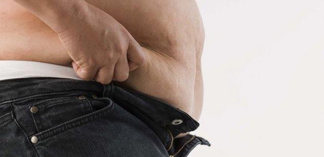 Na léčbu obezity vynakládá ČPZP ročně až 40 milionů korun