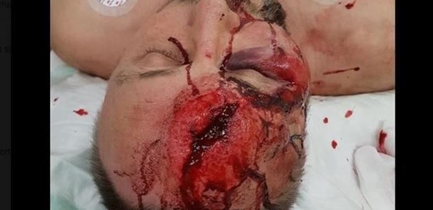 Drastické FOTO z Německa: Poslance AfD mlátili a kopali do hlavy. Krev a díra v hlavě