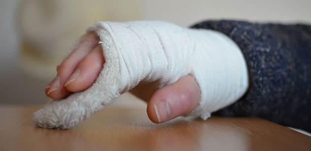 Na komplikované zlomeniny lze využít i kostní lepidlo, které otestovali lékaři