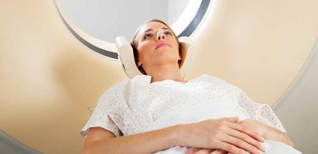 Na rakovinu plic umírá v Česku 8 z 10 nemocných